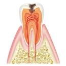 虫歯(C1)