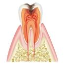 虫歯(C2)
