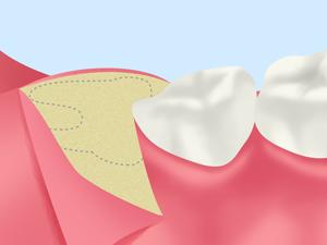 抜歯の必要性