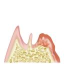 歯周病原因